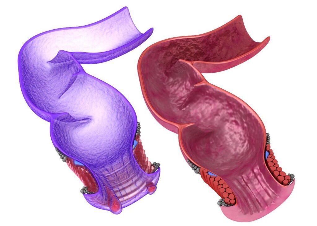 hemorroides gdl Cirujano en lazaro cardenas